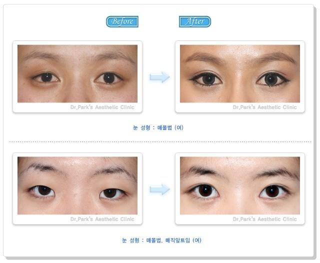 双眼皮手术-- 埋线法怎么做?